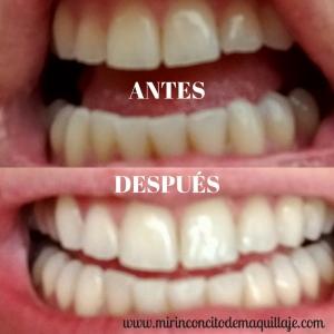 Blanquamiento dental que funciona